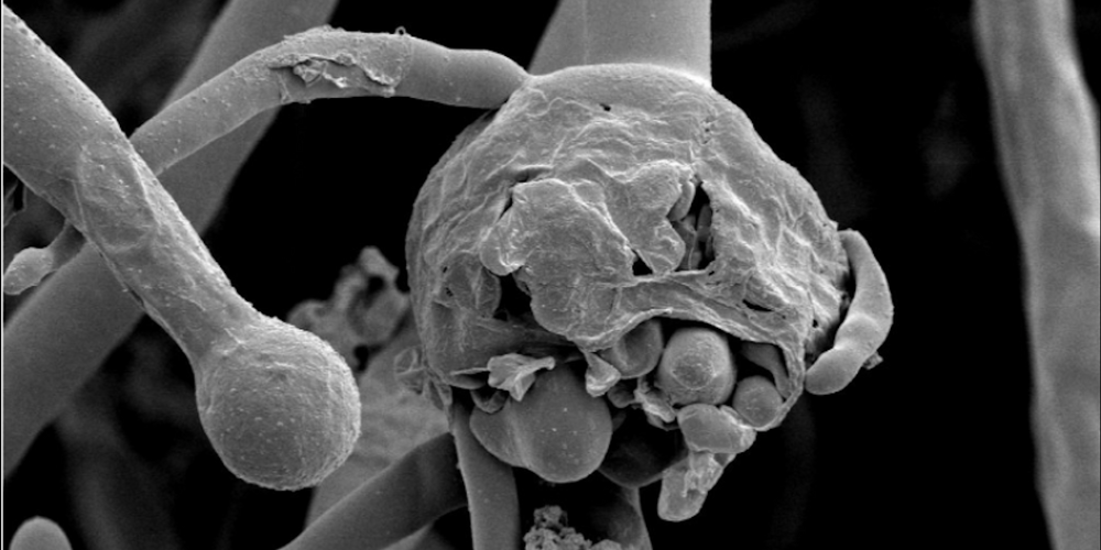 Electron micrograph showing sporangia of Mucorales fungi that causes Mucormycosis.